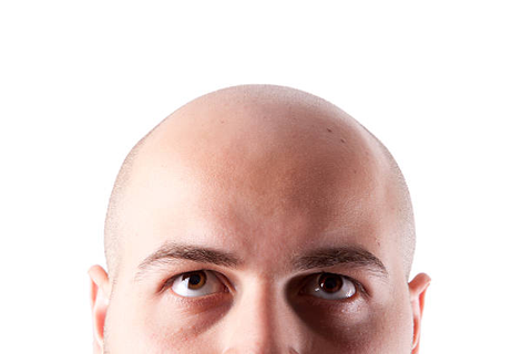 Best Completely Bald Stock Photos, Pictures & Royalty-Free ...