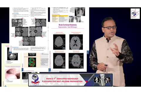 CONCEPTUAL REVIEW OF RADIOLOGY - GAME-CHANGER BOOK FOR ...
