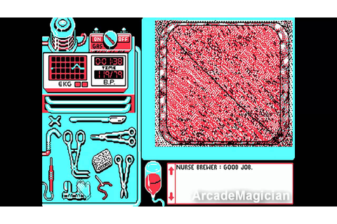 Appendix Operation by Dr. ArcadeMagician - Life & Death ...